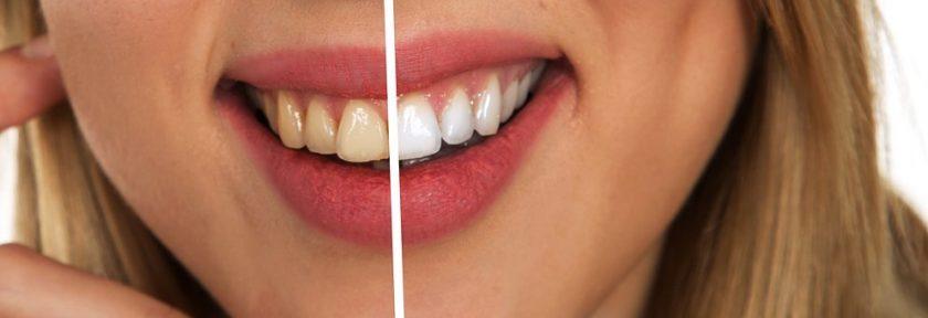 Comment se déroule une consultation avec un dentiste à lausanne ?